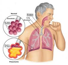 ciri ciri penyakit paru-paru